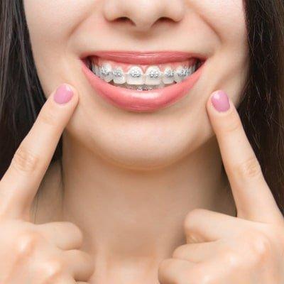 plan-ortodoncia-dentoral