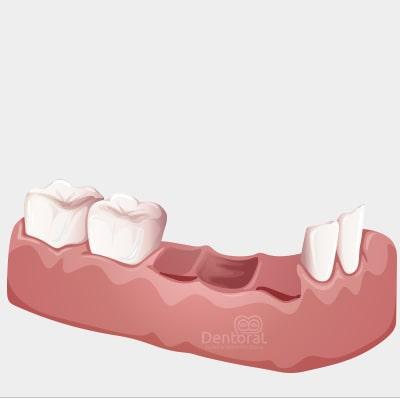 Preprotesica-dental-dentoral