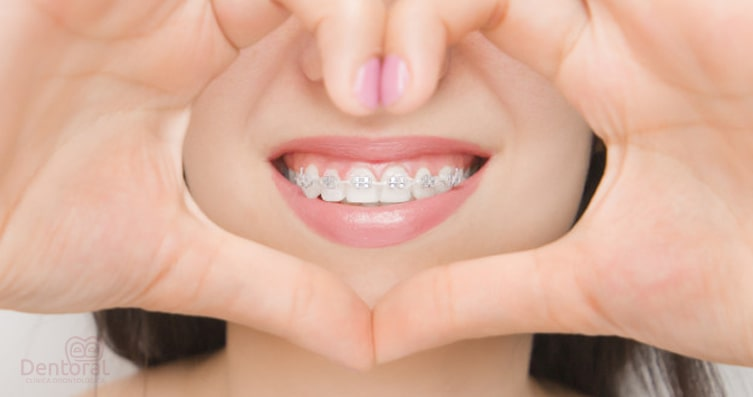 Ideas Para Realizar Una Buena Higiene Dental Con Ortodoncia