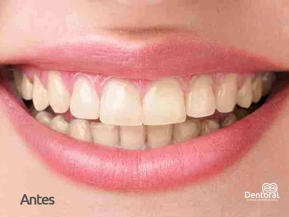 Blanqueamiento HD antes - dentoral