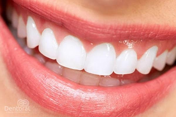 Diseño de sonrisa con carillas