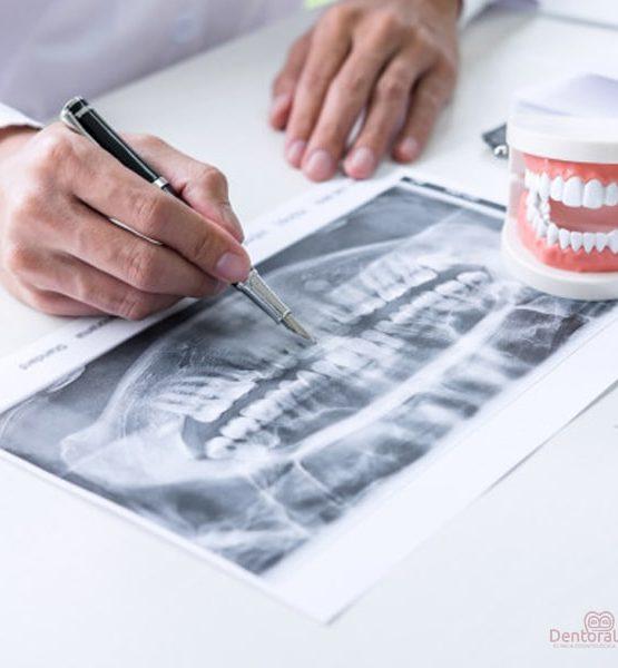 Radiografía tratamiento endodoncia
