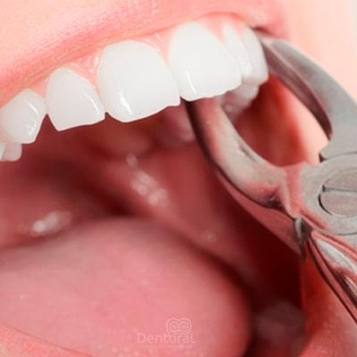 exodoncia dental - dentoral