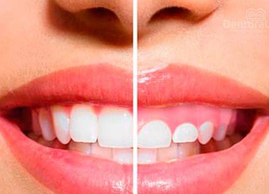 Gingivectomía dental - dentoral