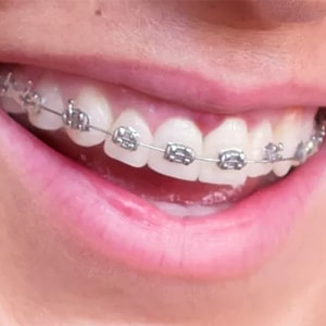 Tratamiento de ortodoncia - Autoligado