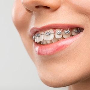 Plan estudiantil en ortodoncia