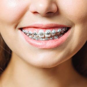 Tratamiento ortodoncia plan oro