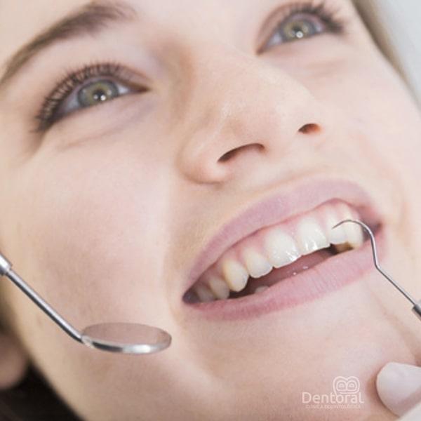 Tratamiento diseño de sonrisa