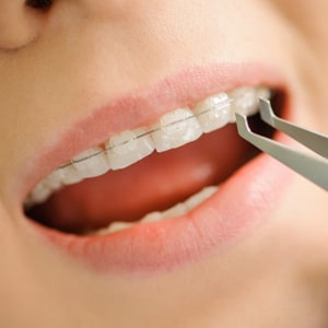 Tratamiento de ortodoncia plan zafiro